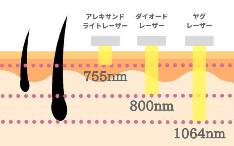 レーザー脱毛器の種類
