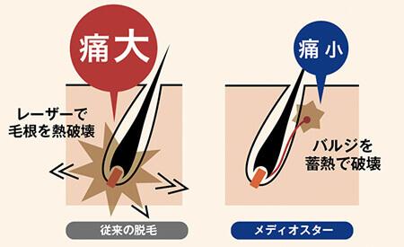 ゴリラクリニック 蓄熱式の医療レーザー脱毛機
